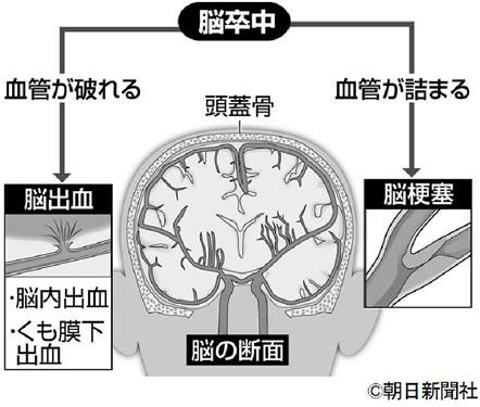 血管をきたえる7カ条 これで心臓・脳を守る